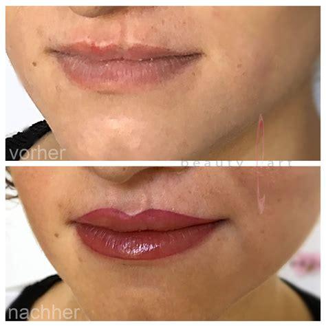 Rorec Lasting Make Up lippen kiefer gaumenspalte behandlung ohne op