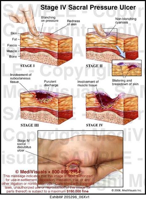 wound healing secrets revolutionary methods to heal your wound save your leg and reclaim your books 43 best images about lesioni da pressione on