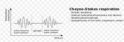 pattern breathing definition causes of cheyne stokes respiration things you didn t know