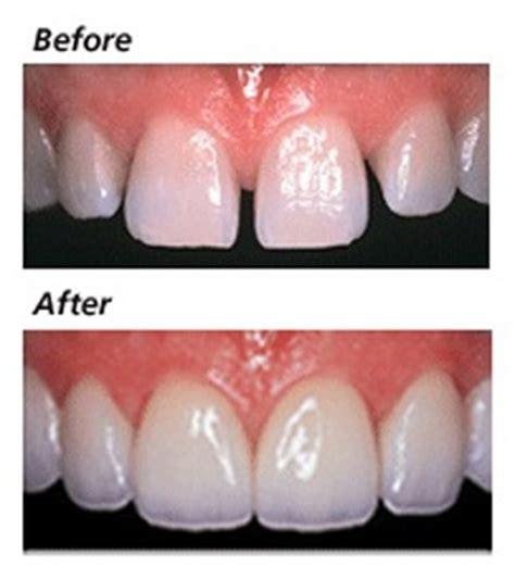 Veneer Komposit composite veneers in adelaide at pro dental sa