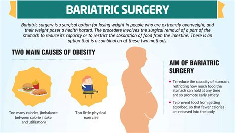 Diet Exercise Or Surgery by Bariatric Surgery Best Laparoscopic Weight Loss Surgery