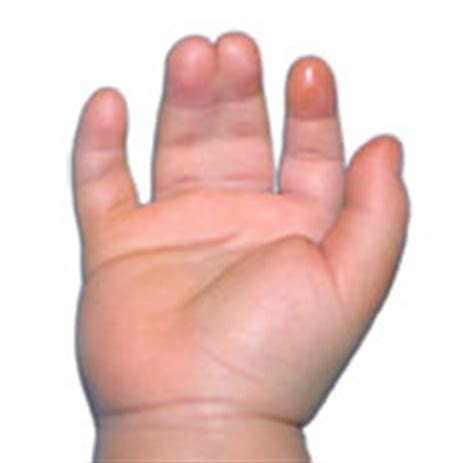the hand of a patient with syndactyly of several digits syndactyly treatment singapore sports orthopaedic surgeon