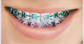 best braces colors braces color braces to be colors and