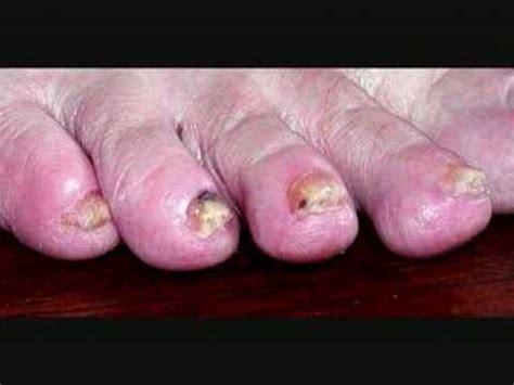 lyme disease symptoms petertravis41