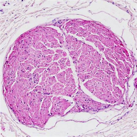 peripheral nerve cross section peripheral nerve fascicles in cross section doccheck