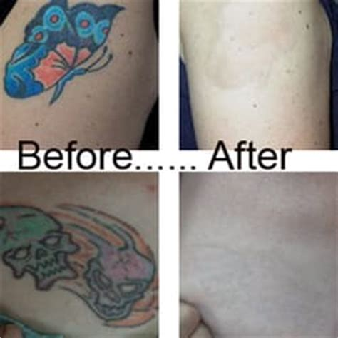 la tattoo removal closed tattoo removal 8000 sunset