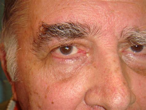 cisti alla testa traumi facciali chirurgo maxillo facciale