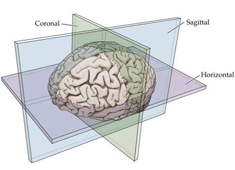 parasagittal section neuroanatomy and neuroembryology
