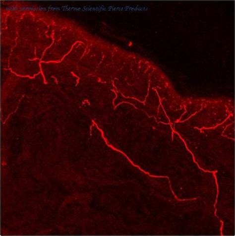 frozen section immunofluorescence protocol trpv1 antibody antibody product information from all