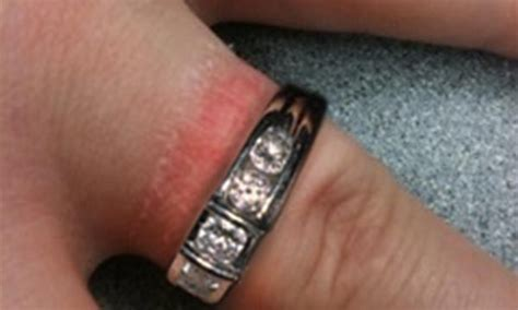 Wedding Ring Rash Cure by What Of Jewelry Can I Wear If Allergic To Nickel