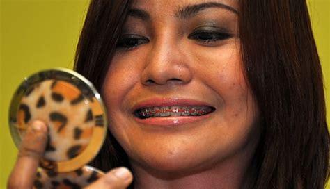 Berapa Untuk Pemutihan Gigi berapa usia yang tepat untuk memakai kawat gigi cantik