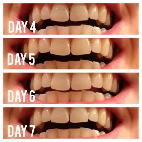 Foe 2 Whitening Day dl teeth whitening activated charcoal