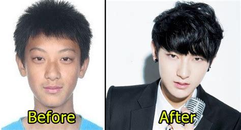 kris exo plastic surgery ศ ลยกรรมหร อไม ด ช ดๆ exo แต ละคนก อนเข าวงการ หน าตา