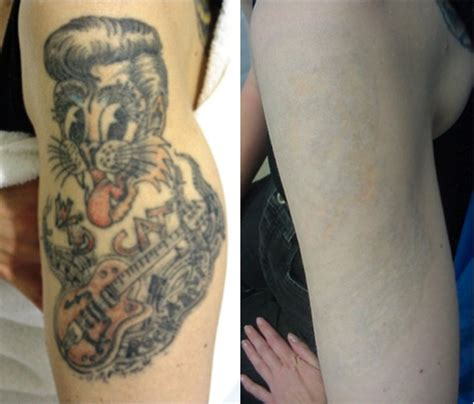 laser tattoo removal jackson ms laser surgery laser surgery laser removal ink