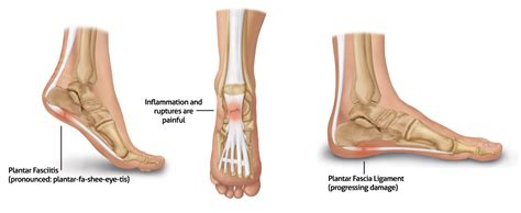plantar fasciitis causes symptoms treatment plantar