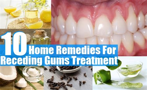 10 home remedies for receding gums treatment diy health