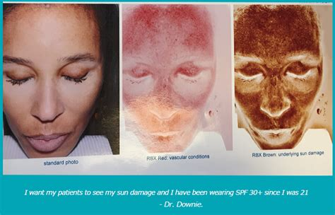 are at home chemical peels safe