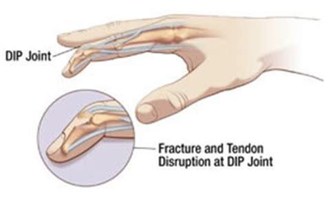 diagram of mallet mallet finger diagram