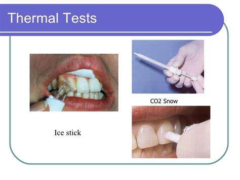 thermal for teeth diagnosis and treatment planning
