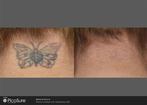 tattoo removal maine picosure laser removal maine laser clinic