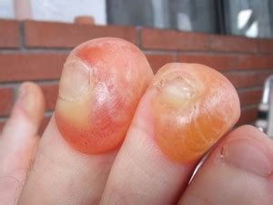 blood blister on blood blisters fixing your