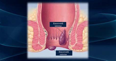 sintomi di emorroidi interne emorroidi scopriamo insieme cause sintomi e rimedi naturali