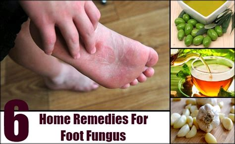 6 home remedies for foot fungus remedy