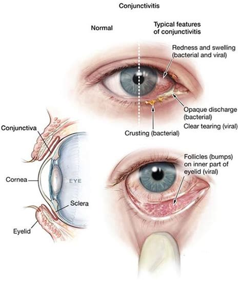 pink eye treatment pink eye conjunctivitis treatment 183 top eye doctor nyc optometrist