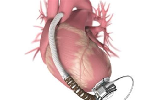 HeartWare LVAD Approved By FDA For Transplant Patients Lvad Clinic
