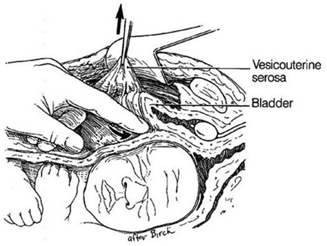c section flap obstetric lacerations
