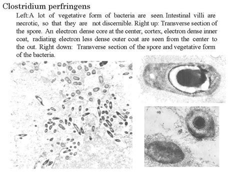 niahniah pathogenic organisms observed  electron microscopeclostridium