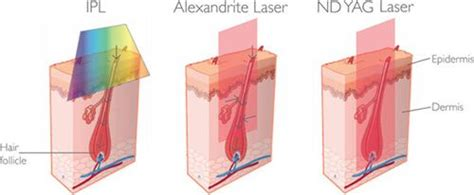 Alexandrite Vs Yag | ipl alexandrite laser nd yag laser hair removal compare
