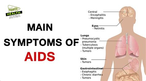 early hiv aids symptoms ehow main symptoms of hiv or aids youtube