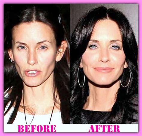 courteney cox plastic surgery before and after | wonder