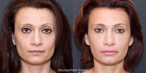 pics of buccal hollow filler cheek fillers quotes