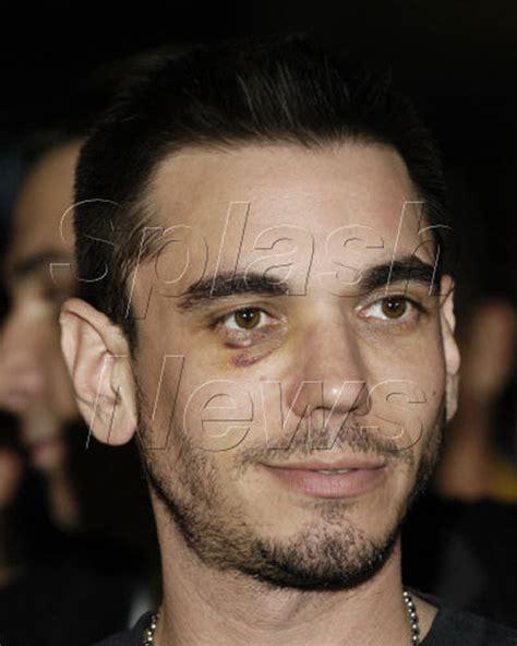 black eyes celebrities with black eyes holytaco