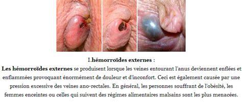 emorroide interne hemorroides externes h 233 morro 239 des
