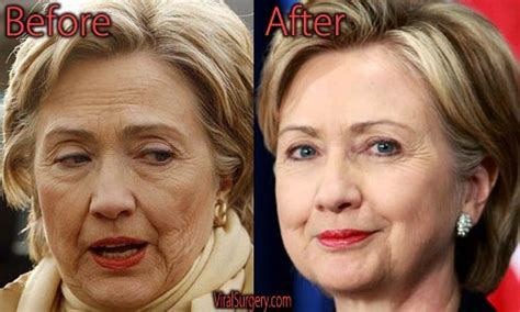 has hillary clinton had cosmetic work done hillary clinton plastic surgery before and after botox