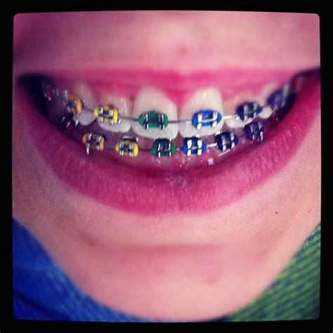 cool colors for braces cool colors for braces colors braces