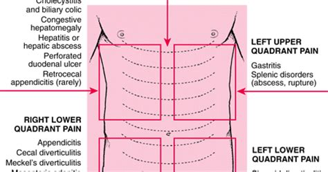 medical: abdominal pain quadrant wise