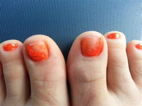 Has Some Messed Up Nails by Lovely Messed Up Toenails After Being Told They Were