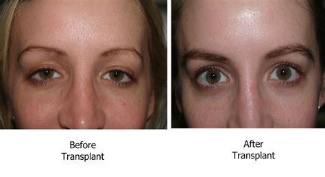 eyebrow transplant spiky hairs eyebrow transplant spiky hairs eyebrow transplant spiky
