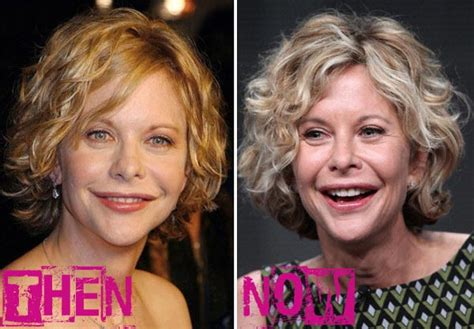 when did meg ryan have a face lift meg ryan plastic surgery before after breast implants
