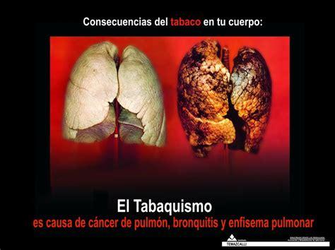 Imagenes Impactantes Sobre Adicciones | el tabaco la principal adicci 243 n de los j 243 venes
