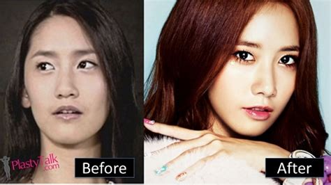 jessica jung before plastic surgery the truth behind kpop snsd plastic surgery plastytalk