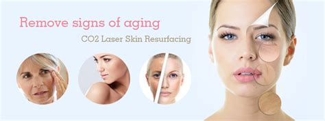 tattoo removal in pune laser tattoo removal in pune tattoo removal by laser