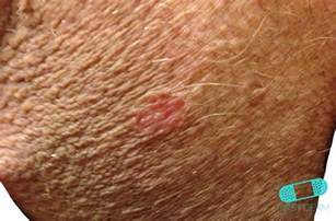Uv Light Therapy Online Dermatology Psoriasis