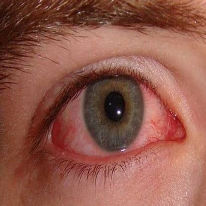 eye infection treatment top 5 herbal remedies for eye infection eye infection treatments search home remedy