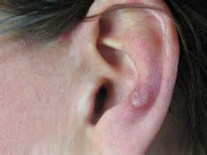 oreille atlas de dermatologie professionnelle