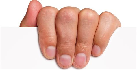 what is a nail bed nail bed injury archives the handcare blog